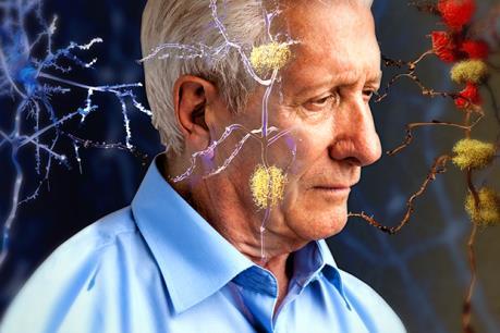 Mất nhiễm sắc thể Y có thể làm tăng nguy cơ mắc bệnh Alzheimer