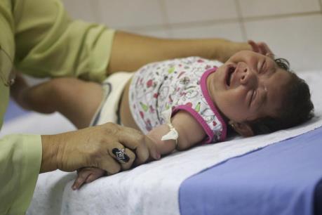 Brazil: Hơn 1.700 trẻ mới sinh mắc chứng đầu nhỏ liên quan đến virus Zika