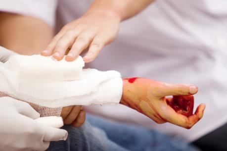 Sơ cứu vết cắt mạch máu: Kỹ năng sinh tồn nhất định phải biết