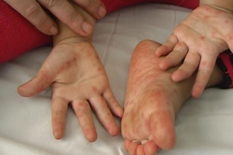 Cảnh báo: Tiềm ẩn lây lan bệnh tay chân miệng trên diện rộng tại TP Hồ Chí Minh