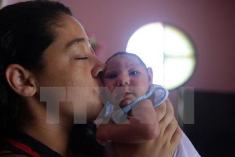 Trường hợp trẻ mắc chứng đầu nhỏ nghi liên quan đến vi rút Zika đầu tiên tại Việt Nam