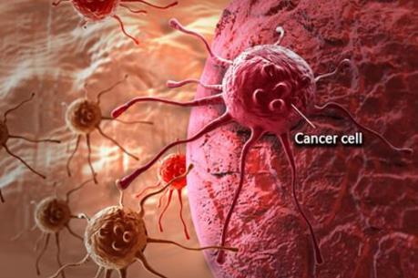 Cảnh báo gia tăng mạnh số ca tử vong do ung thư ở nữ giới