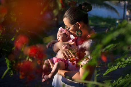 Cần theo dõi lâu hơn trẻ sơ sinh có mẹ nhiễm virus Zika
