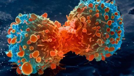 Phát hiện mới trong điều trị ung thư