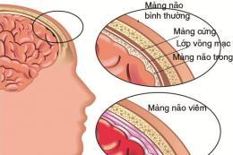 Cảnh báo những nguy hiểm của bệnh viêm não