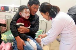Nổ bình gas làm 7 học sinh tiểu học bị bỏng nặng