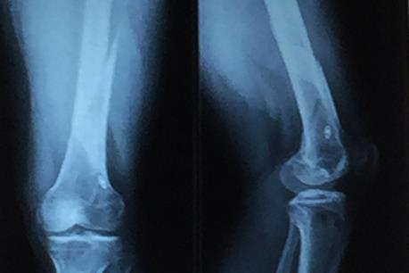 Phát minh vật liệu sinh học mới kích thích tái tạo xương