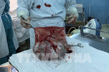 TP Hồ Chí Minh: Phẫu thuật khối u buồng trứng nặng 35 kg