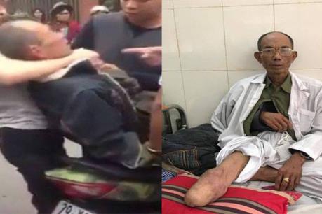 Khởi tố 2 cha con hành hung thương binh sau va chạm giao thông tại Chương Mỹ, Hà Nội