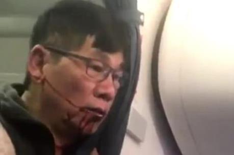 """Vụ kiện United Airlines sẽ trở thành """"án lệ"""" của ngành hàng không thế giới"""