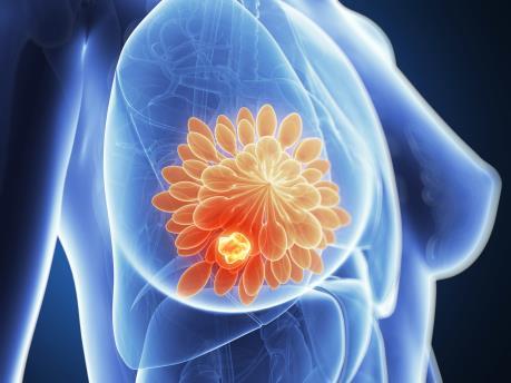 Phát triển loại thuốc chẩn đoán sớm ung thư vú