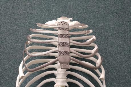 Cấy ghép thành công xương ngực và xương sườn chất liệu titan bằng công nghệ in 3D