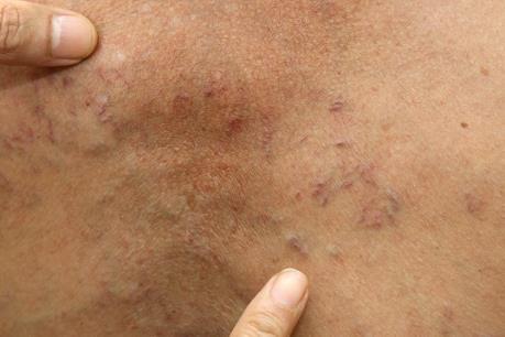 Bộ Y tế hướng dẫn người dân cách phòng bệnh sán dây lợn