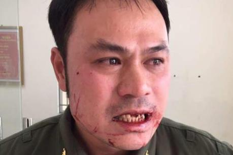 Phó Thủ tướng yêu cầu xử lý nghiêm vụ hành hung nhân viên sân bay