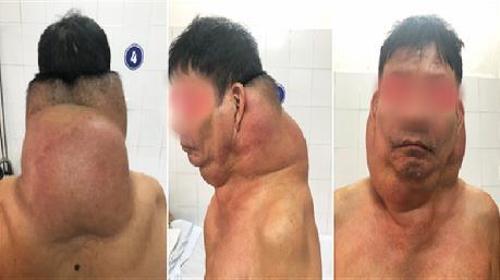 """Phẫu thuật khối u cho """"người gấu"""" ở Hải Phòng"""