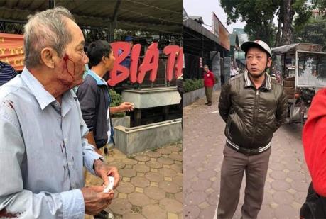 Hà Nội điều tra vụ cụ ông 80 tuổi bị hành hung phải nhập viện