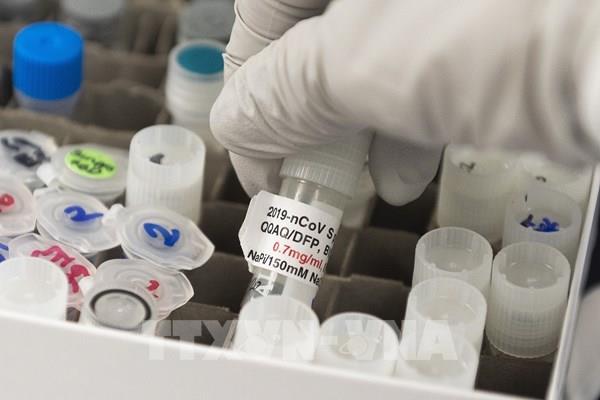Pháp sắp thử nghiệm vaccine phòng COVID-19 trên người