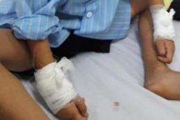 Nghệ An: Đình chỉ chuyên môn bác sỹ mổ nhầm tay trẻ 6 tuổi
