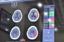 Bệnh viện Việt ứng dụng trí tuệ nhân tạo trong điều trị đột quỵ