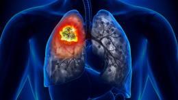Trung Quốc tìm ra loại gen quan trọng để điều trị ung thư phổi